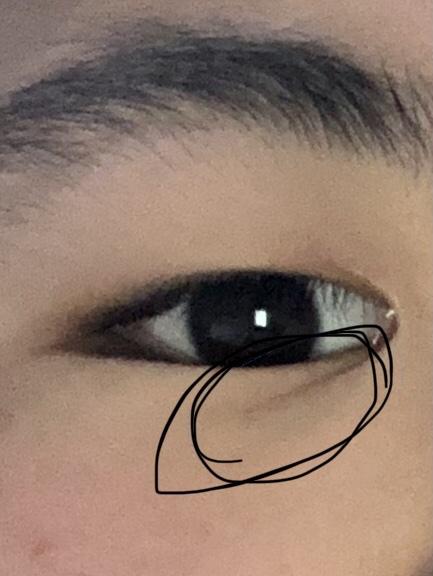目のここの線って何なんですか? 周りの人の顔とか見てますけど、みんなないです。 また、太ってることと関係がありますか?