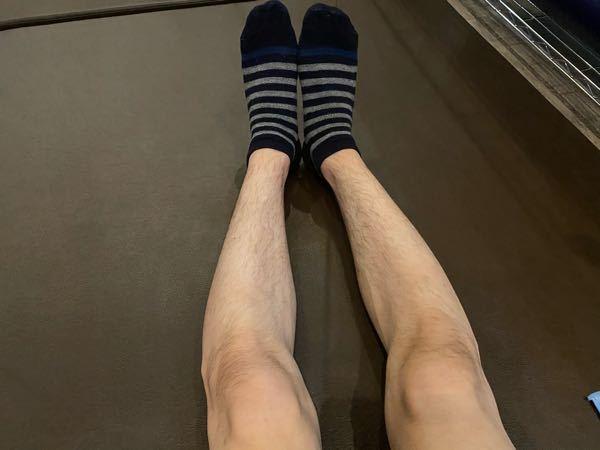 これO脚ですよね? O脚を治す方法があれば教えてください!!
