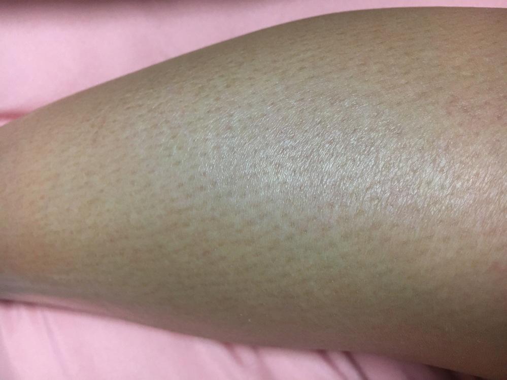 毛穴の黒ずみについてです。 特に足なんですが、毛穴が黒ずんでいるというのか、せっかく毛を剃っても毛穴がよく分かって、剃っている感じが見て分かってしまいます。 ずっと悩んでいます。 どうすれば毛穴...