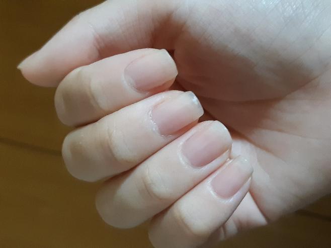 爪のピンクの部分を伸ばす方法についてです。 私は1年ほど前まで爪の噛み癖があり、夜は毎日ハンドクリームなどを塗ってやっと治すことが出来ました。 ですが、中学の校則で爪を伸ばしたりハンドクリームを持ってきたりすることが出来ないんです。 休みの間は爪を伸ばすことでまだ綺麗に見えてるのですが、学校だと短くしなければいけないのでどうしても綺麗とは言い難いんです。 なので少しでも爪のピンクの部分を...
