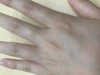 中学生です。 汚い手がコンプレックスです。 中学生なのに、スベスベな肌ではなくシワシワです。そして、シミ?のようなものもあり余計汚いです。 綺麗にする方法はありますか?教えてください。
