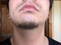 髭脱毛について。 この髭は濃い方ですか? 医療脱毛するとしたら何回程でなくなりますか?