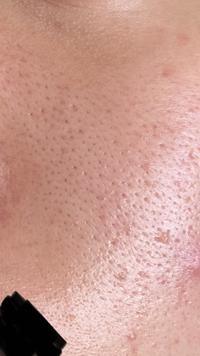 閲覧注意。  女子高校生です。 ここ最近、頬の横の毛穴の開きがすごいです。 オイリー肌で人より過剰に皮脂が分泌されてここまで開いてしまったと思われます。  具体的にどのようなことをすれば改善されるでし...
