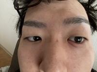朝起き たら 目 が 痛い