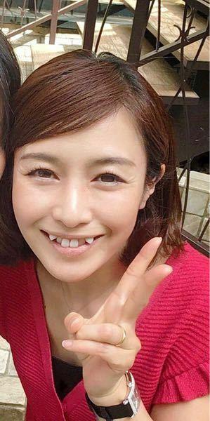杉崎美香の八重歯はヤバいですか? 40代であの歯はヤバいですか?