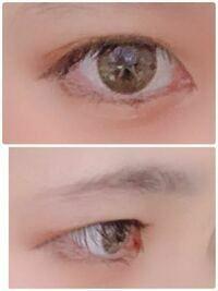 自分はこのような瞼でアイプチでは綺麗な二重になりません。 そこで折式などの皮膜式のもので綺麗な二重になりますでしょうか?