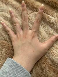 中1女子です。 毛が濃くて手の甲まで生えています  小学生の頃から気にしてて剃っても毛穴が目立つしすぐ生えてきてほんとに嫌です  足とか腕とかも濃いのですが手の甲は皆生えてなくて字を書いてるところとかを...