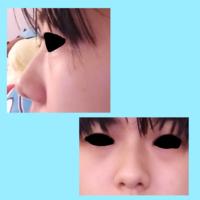 鼻がコンプレックスです…。 鼻先が丸いのと鼻中隔が短いのが悩みです。 整形で直す方法だと何がありますか? 画像が私の鼻です。 すっぴんでファンデとかしてないので余計汚く見えるかもです…。