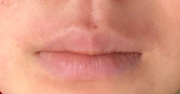 唇の上辺りの皮膚が赤いです。つい最近まで接触性皮膚炎でステロイド外用薬を塗っていました。塗り始めて5日目です。最初よりマシになったのですがこれは跡が残ってる感じですか?この赤みを治す方法はありますか?