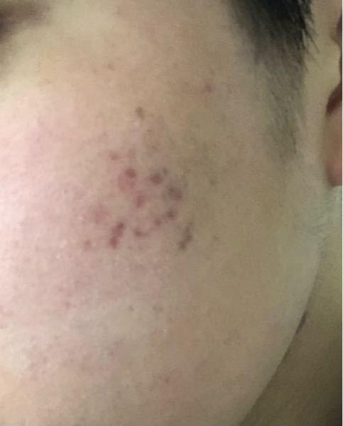 赤いニキビ跡が治りません 18歳男です。ビタミン剤を2ヶ月ほど飲んでいるのですが赤いニキビ跡が改善しません。 クリームを塗った方がいいですか?