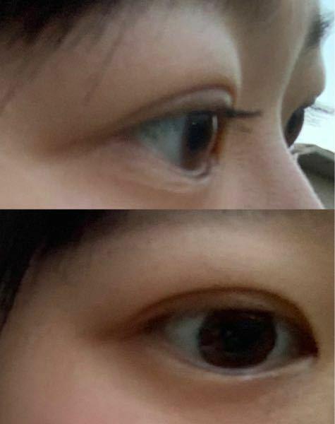 埋没をして1ヶ月立ったんですが 元々瞼が分厚く埋没したあとにすごく不自然な二重になります。 こんな時はどうしたらいいでしょうか。 痩せるしかないのでしょうか? 上瞼の脂肪取りをしたほうがいいんでしょうか? 1ヶ月も経ったのでダウンタイムは終わっております!