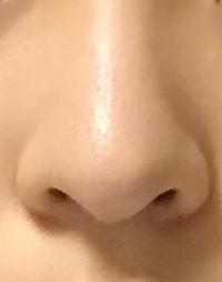 鼻先がでかくて丸いのですが、これは脂肪なのでしょうか?それとも皮膚なのでしょうか? また、この鼻先を細くしたり尖らせるにはどの整形が向いていますか?