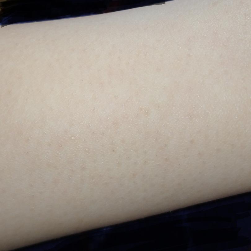 ⚠腕の写真あり⚠ 腕の毛穴を目立ちにくくするにはどうしたら良いでしょうか、、?;;