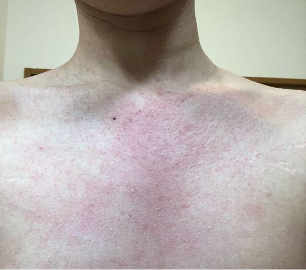 肌の質問です。 最近、耳の後ろや胸元、お腹、肩らへんの背中や 股間のあたりが痒く、胸元や肩らへんを痒くと赤くぶつぶつができ、とても痒いです。これはなんなんでしょうか? ちなみにですが、今 脂漏性...
