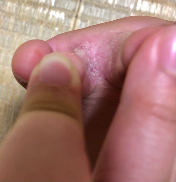 これは水虫ですか?小指と薬指の間、薬指と中指の間、指の裏にも広がっています。半年ほど痒みが収まりません。見にくい写真ですみません。