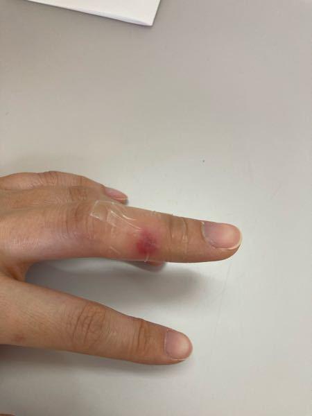 透明のテープを貼っているので見にくいですが、一昨日から中指に出来物が出来て腫れています。 最初は小さな水疱が出来ていましたが潰れて今のような状態になってます。痒みはなく、痛みがあります。 これは...