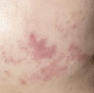 私は今大学生で、生まれつき血管腫という赤アザがあって美容皮膚科で何回もレーザーをしてきました。(中学生が最後) 最近vビームというレーザーをよく聞くのですが、赤アザに効果はありますか?