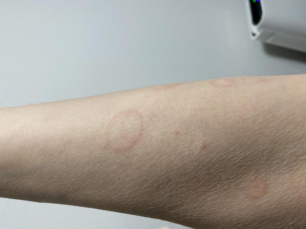 この湿疹って何ですか? 腕と背中にいっぱい出てきました。 突然です。 痒みも痛みもありません。