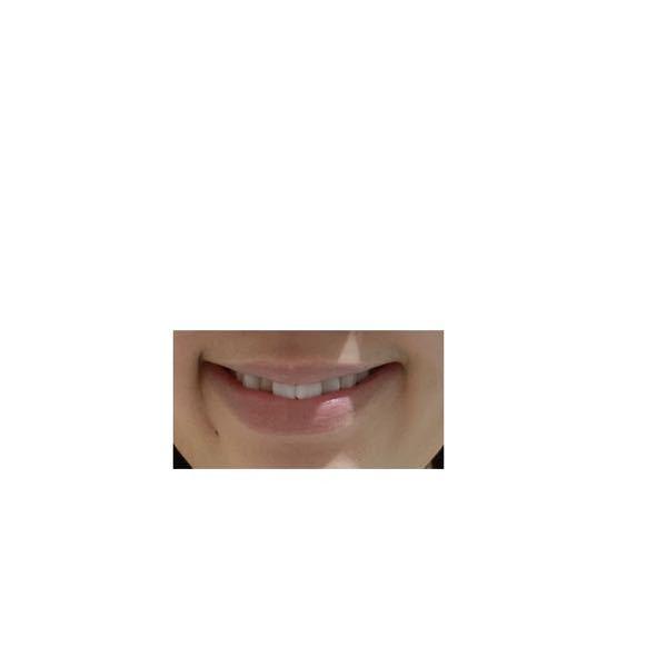 観覧注意です。 私は自分の笑った顔が気持ち悪くて嫌いです 片方だけこのように線ができます そしてこの線が出来る側は普通にしていると口角も下がっていて反対側より輪郭がぷっくりしてます ちなみに同じ...