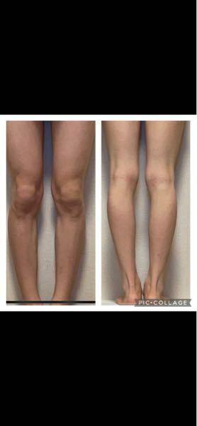 10代男で172cmなのですがこの脚だと、体重どれくらいに見えますか?形は汚いでしょうか?太さはどうでしょうか。正直でいいのでいろいろ教えて頂きたいです。