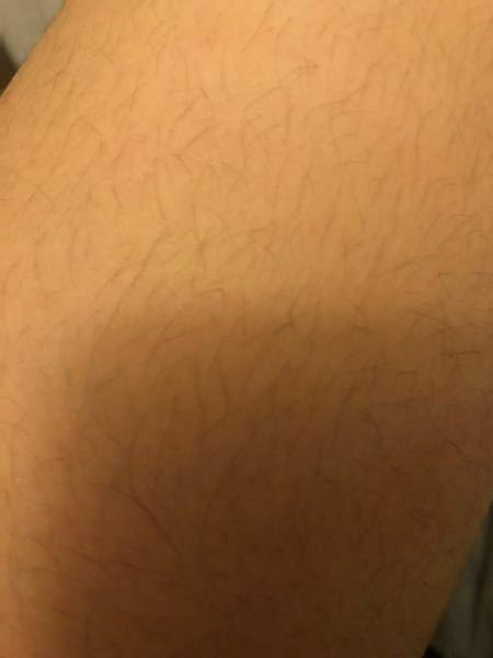 私は小6なのですがめっちゃ 毛が濃いです。 前に除毛クリームを使ったのですが 次の日にはポツポツ生えてきてしまいます。 エステなどは値段が高くて行けません。プラス田舎でエステ的なところがないです。 おすすめの除毛方法などありますか? 足の太ももだけでもこんな感じです。