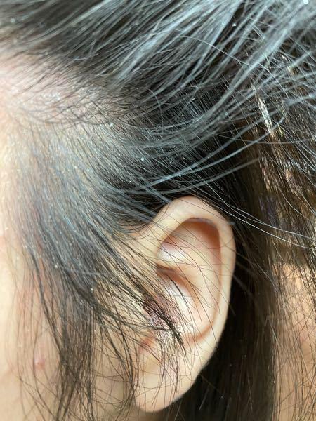夜髪を洗って朝起きたらこのようになるんですけど何が原因か分かりますか?
