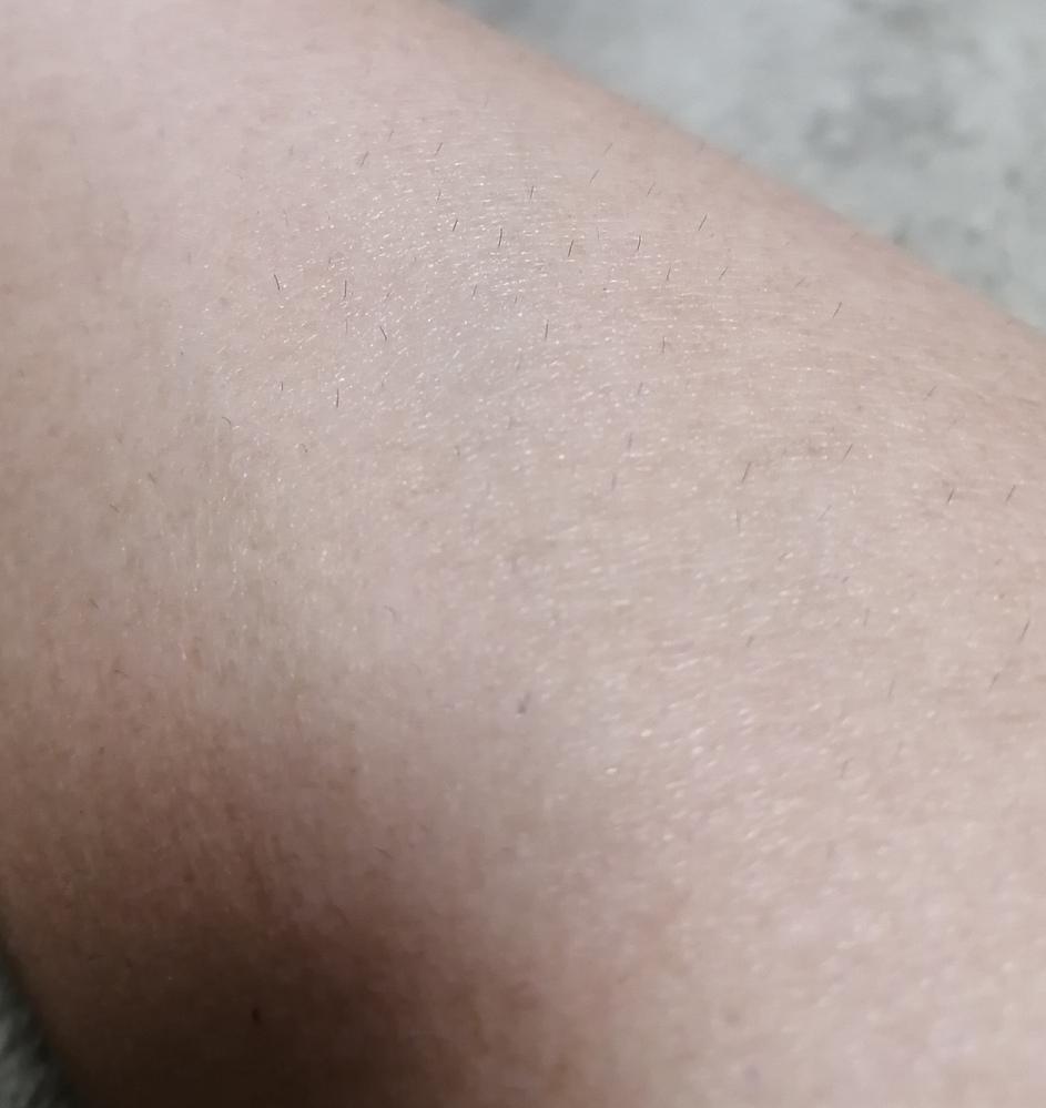 中2です。 腕毛濃いですか? 濃ければどうしたら薄くなりますか?