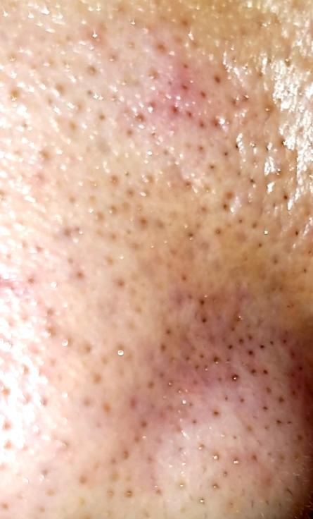 鼻の黒いプツプツがなくなりません。どうしたらいいでしょうか?