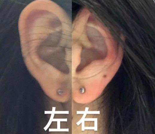 先日、両耳にピアスを開けたのですが、左右非対称に空いてしまっていることに気が付きました。そもそも、耳たぶの大きさが左に比べて、右のほうが大きく完全に左右対称には開けれないということは分かったうえで開け たのですが、何度見てもバランスが悪いなと感じてしまいます。 自分が気にしすぎで他の人が見たらなんとも思わないのであればそのままにしますが、違和感があるとなると開け直しを考えています。2連ピアスにすると左右非対称なのが目立たないというのもネット記事で見ましたが、アルバイトの関係で難しいので開けなす方向で考えています。 率直な感想を聞かせてほしいです。 また、開けなおすならどちらの耳を、どの位置に開けなおしたほうがいいか教えていただけるとありがたいです。