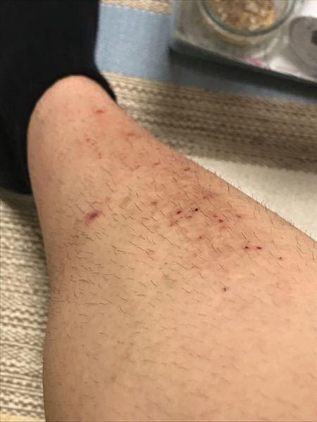 汚い写真ですいません。 高校三年生男です。写真のように掻きむしってしまいすごいことになってしまいました。これは脚ですが腕にもあります。一応病院に行き痒み止めの薬は貰って症状は落ち着いてるんですが...