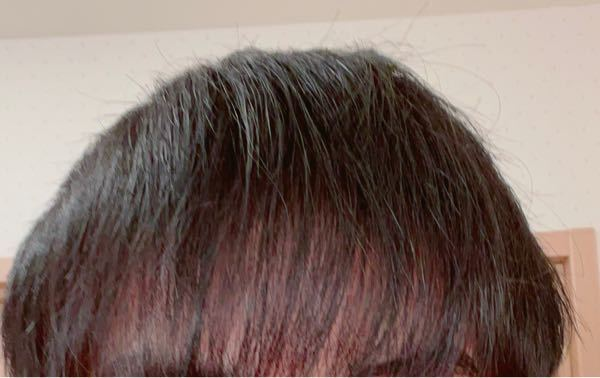 18歳です。 昔からおでこが広いのが悩みなんですが、この前髪ははげてきてますか? あと、おでこの広い人が似合う髪型も教えていただきたいです。
