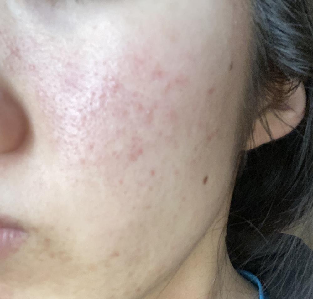 20歳 女です。混合肌で敏感肌でもあります。 インナードライ気味です。 画像のような頬の赤み( 赤ニキビ?赤ニキビ跡?) がずっと治りません。 今のスキンケアは 《夜》 ・カウブランド クレンジングミルク ・カウブランド 無添加洗顔 ・イハダ しっとり化粧水 ・イハダ 乳液 ・イハダ 薬用とろけるバーム 《朝》 ・カウブランド 無添加洗顔 ・イハダしっとり化粧水 ・イハダ乳液 を使っています。 改善点を教えていただきたいです。 よろしくお願いいたします。