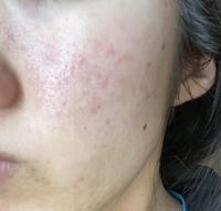 20歳 女です。混合肌で敏感肌でもあります。 インナードライ気味です。 画像のような頬の赤み( 赤ニキビ?赤ニキビ跡?) がずっと治りません。 今のスキンケアは 《夜》 ・カウブランド クレンジングミルク ・カウブランド 無添加洗顔 ・イハダ しっとり化粧水 ・イハダ 乳液 ・イハダ 薬用とろけるバーム  《朝》 ・カウブランド 無添加洗顔 ・イハダしっとり化粧水...