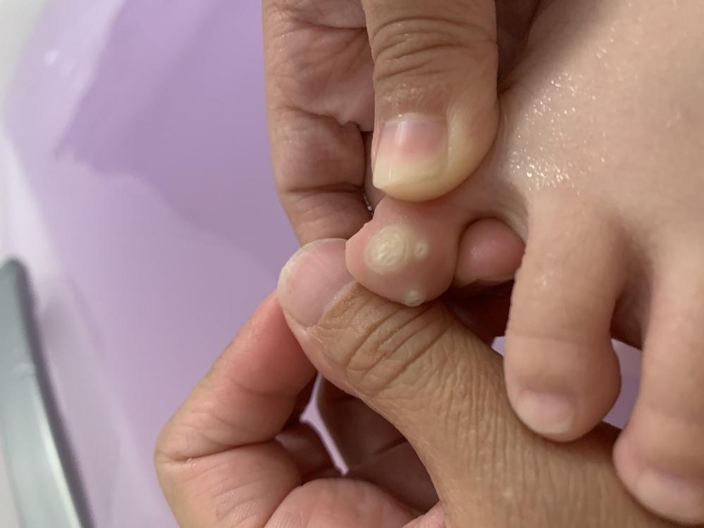 子供の足の小指の内側に硬いできものができているのですが、これは魚の目でしょうか? 硬いです。抑えても痛くはないそうです。