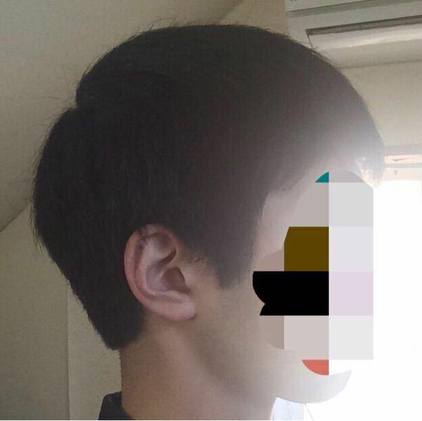 これは絶壁頭ですか?