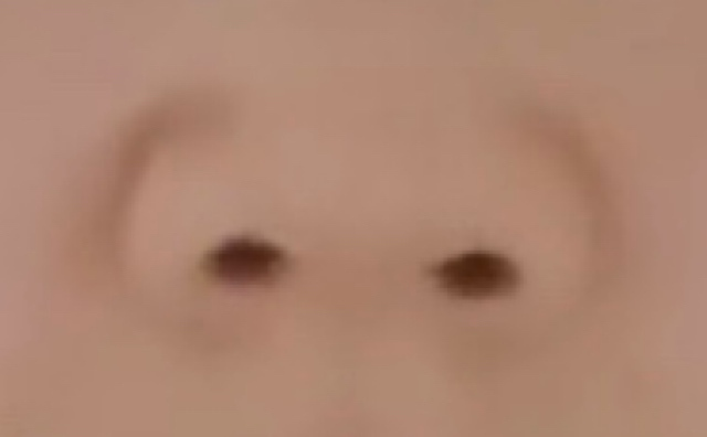 素朴な疑問なんですが、この方の鼻っていわゆる豚鼻ですか? ネットで拾ってきた画像です。 私の鼻ではありません笑笑