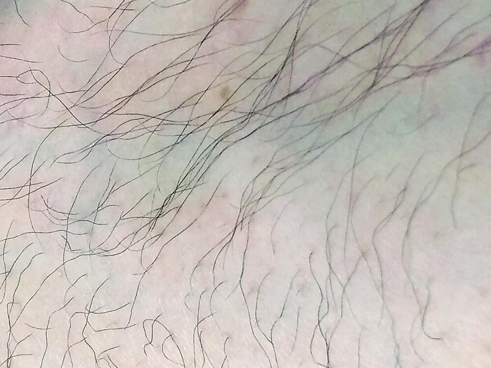 sarlisiの脱毛器を購入しようか迷っています。はじめてなので使い方とかもできるか心配です。 ちなみに男です。写真(汚い写真ですいません)のような毛なのですが脱毛できるでしょうか?