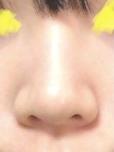 私の鼻は低くて小鼻も広くてブスで、ずっとコンプレックスです。 この鼻をもう少しだけ高く、もしくは小鼻をスっとさせる方法は整形以外でありませんでしょうか?鏡を見る度に辛くなります。どうしても綺麗な...