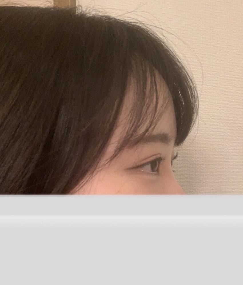 この目って奥目ですか??出目ですか?? 見分け方がよくわからなくて、、