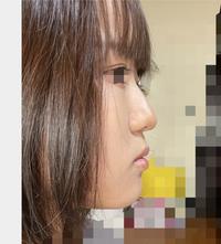 横顔がモアイなんですけどどうすれば綺麗になりますか??教えてください。