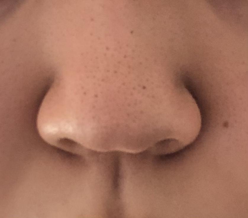 毛穴が汚くて申し訳ないです。鼻がコンプレックスで整形を考えています。橋本環奈さんのような鼻に近づけるにはどんな施術がいいですか? プロテーゼはなしでお願いします。
