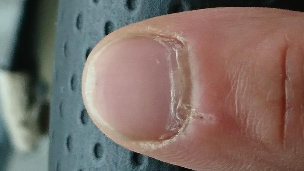 爪がなんか汚いです。 甘皮?のところがボロボロです どうケアしたらいいですか? アラサー男