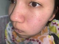 スキンケアについてです。写真あります。 大学2年生、女性です。 肌がすごく汚くて悩んでいます。  今のスキンケアは、 皮膚科の薬を3錠 イプサの化粧水 メラノcc 無印の乳液高保湿タイプ です。  脂性...