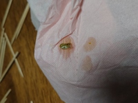今オカメインコを飼ってるのですが最近糞の色が少し黄色みになってきました。病気でしょうか?よろしくお願いします