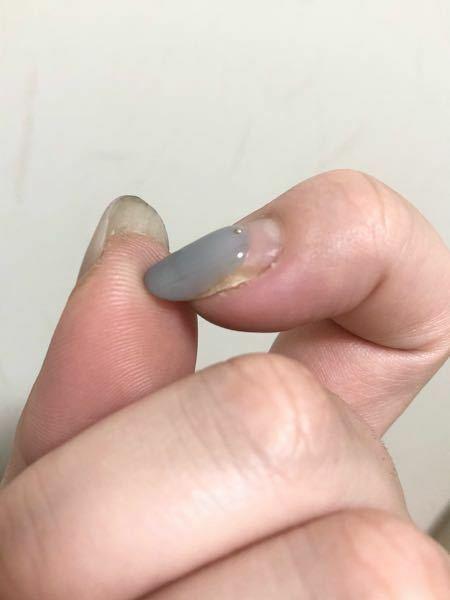 人差し指の爪の横が、空洞があるような黄色いような感じになっています。 押すと痛いです。 バイ菌が入ってしまったのでしょうか。 ネイルは今週日曜日に行く予定です。