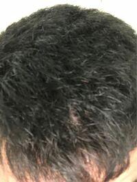 この髪の毛市販の縮毛矯正でもアイロンかけたら変わりますか?