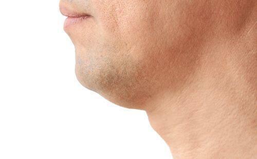 二重顎顎の下のたるみ首と顎の境目のたるみはどこの筋肉が関係していますか?