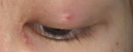 埋没をして大体2ヶ月経っています。 最近になって腫れるの多くなって、(泣いたあとの腫れのようなもの)昨日から触っても痛いし閉じても目をぱっちり開けたり上向いたらめちゃくちゃ痛くて、これは裏に糸が出てるのでしょうか?それとも、なにかかぶれたりしたのでしょうか? 私は目を擦るのが怖くて毎日アイマスクをして寝ています。それで炎症を起こしたのかなと思っていますが不安です。これは危険な状態でしょうか?