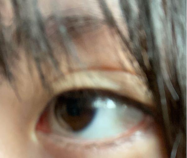 【写真付き】私の瞼、凄くたるんでるんです。皮が伸びているみたいな。眼瞼下垂かと思い、なんかチェックみたいなのをやってみたのですが、大丈夫でした。 凄くコンプレックスです.....助けてください...... アイプチはやったことはないです 今中学2年生です。 どうすればいいでしょうか..... 整形以外で瞼を引き締めることができるものを教えてください........お願いします!!!本当に本当にお願いします..!!! この瞼の所為で自分が嫌いになってしまいそうなんです