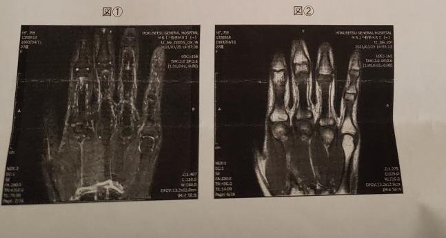 軽トラにはねられ、右手小指を損傷しました。 レントゲン、CT、MRI検査しましたが結果は異常なし。 ですが、3ヶ月経過後も小指が曲がらず痛みがあり、お箸持つのもツライです……。(医師には伝えてますが、なんでだろうねの一言のみ) このMRIの画像を見て、素人目からして骨がズレてるように見えたのですが、これが正常でしょうか? 詳しい方に教えていただきたいです。